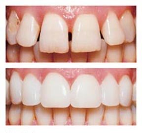 Napa Dental Before and after teeth braces orthodontics