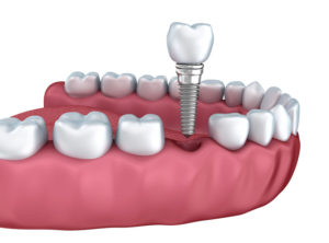 Dental Implant Service In Woodbridge Ontario Napa Dental