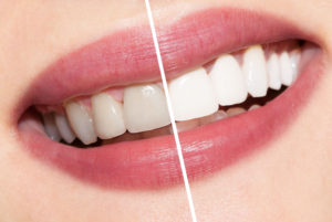Napa Dental Whitening Services